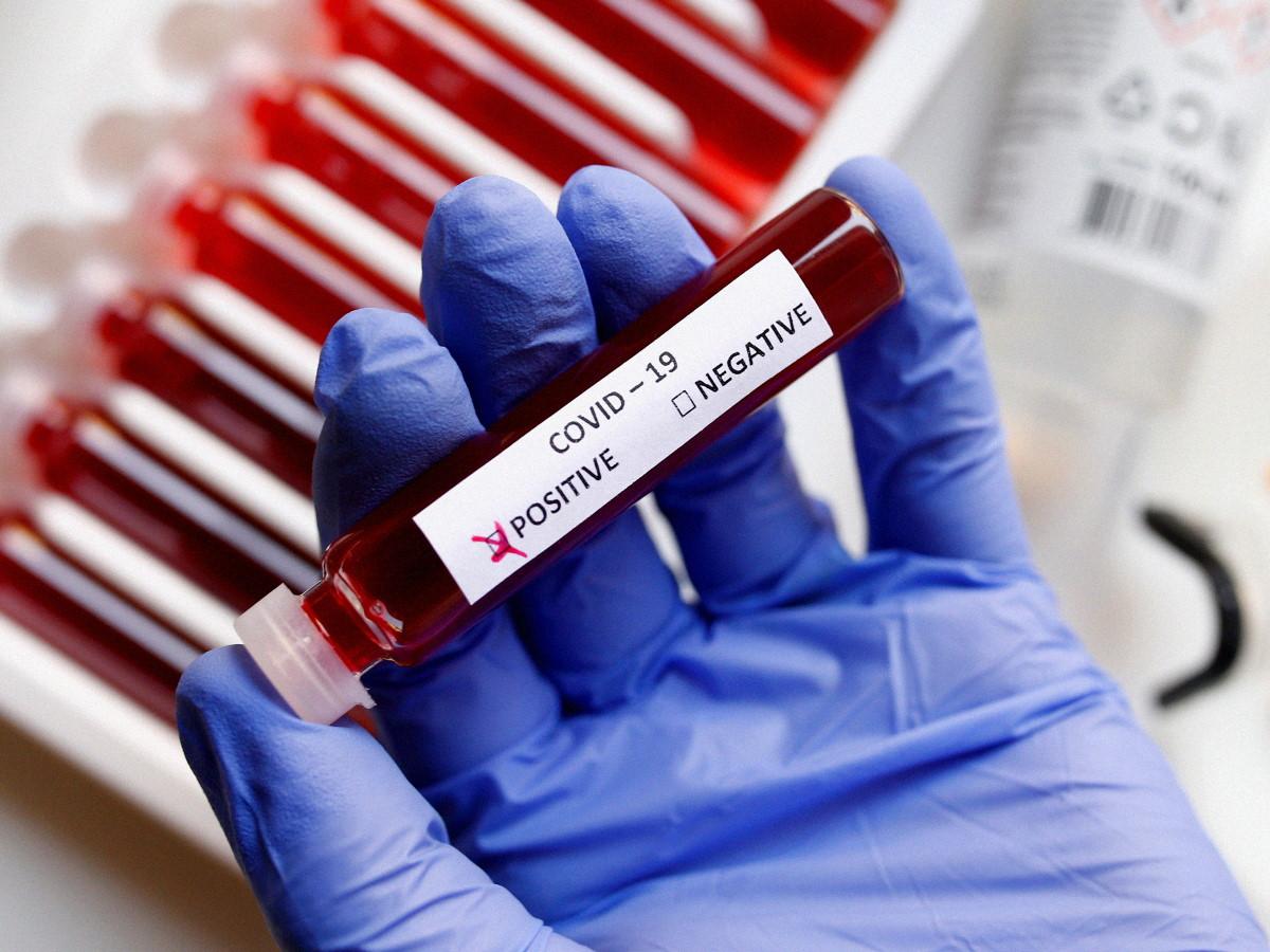 В Британии заявили о новой мутации коронавируса